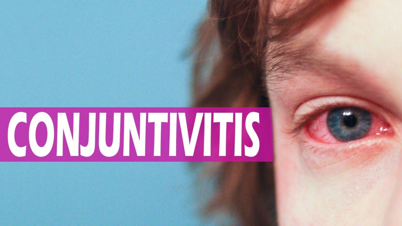 Remedios caseros para la conjuntivitis alérgica y ...