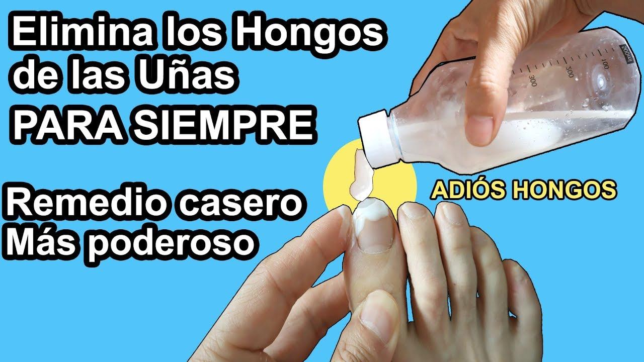 como olvidar los hongos de las uñas de los pies naturalmente