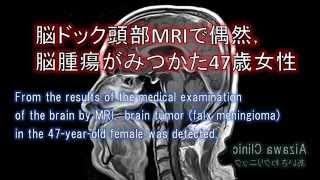脳ドックMRIで,脳腫瘍がMRIでみつかった脳ドックの症例.脳ドック後,造影MRIで造影効果あった脳ドックMRIを例示.脳ドックでは脳神経外科専門医がMRI後に,脳ドック結果を当日解説.