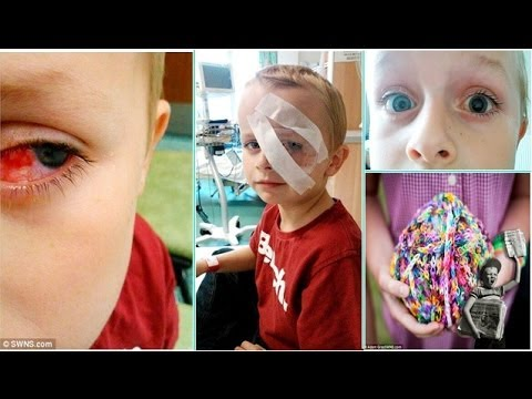 Loom Band Bracelet Toy Slammed As Boy Is Blinded Youtube