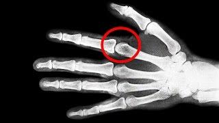 Ist Fingerknacken Gefährlich?