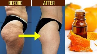 Secret Trick How to Get Rid of Cellulite Fast Overnight / Lose Thigh Fat