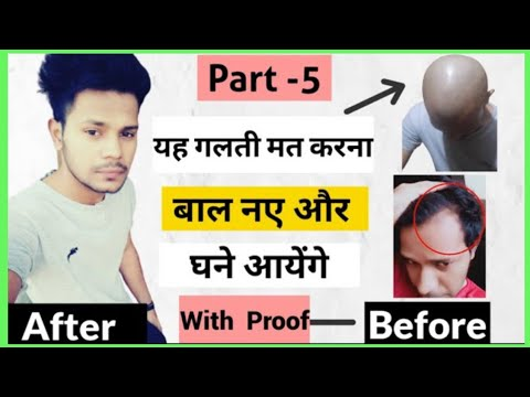 यह गलती मत करना   After Head Shaving  नए और घने बाल आएंगे  (Stop Masturbation, Regrow Hairline ) from YouTube · Duration:  3 minutes 46 seconds