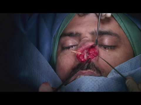 Rhinoplasty  |  Dr Abdul Juratli - FRCS (ORL -HNS)