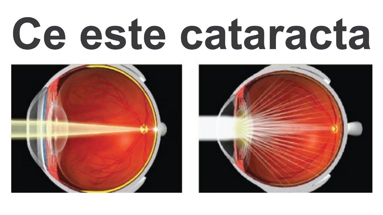 cataractă cum să îmbunătățim vederea)