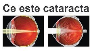 viziunea se așează cataracta