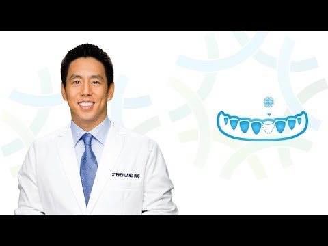 Bone Grafting in Henderson NV: Dr. Huang | Henderson Oral Surgery & Dental Implant Center