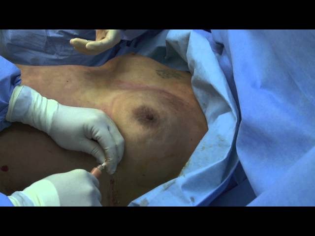 BEAULI part 4 fat injection 2min39s 1280x720.mov