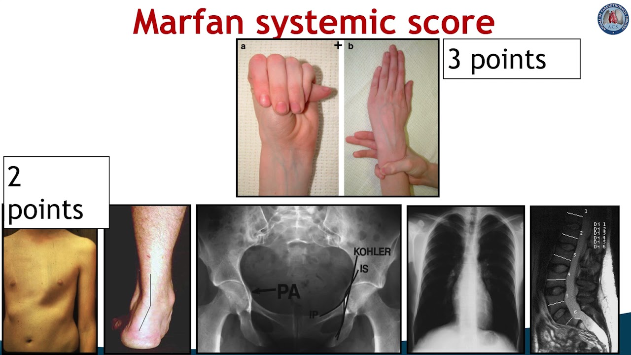 Ehlers Danlos Syndrome Differences In Manifestations Of Marfan Syndrome Ehlers Danlos Syndrome And Loeys Dietz Syndrome