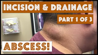 Repeat youtube video Incision & Drainage of an Infected Cyst - Part 1 of 3