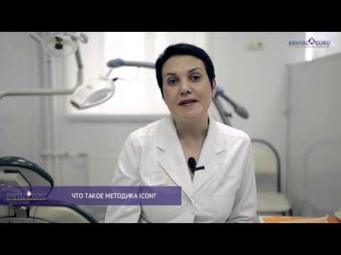 Лечение кариеса без сверления - методика ICON.