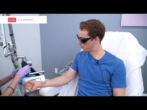 Laser Tattoo Removal LIVE SESSION at LaserAway 🔴