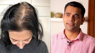 Причины выпадения волос у женщин Доктор Вивек