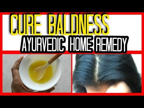 LOSING HAIR? quick home remedy   ANCIENT INDIAN SECRETS