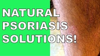 Psoriasis Natural Treatment SOLVED!