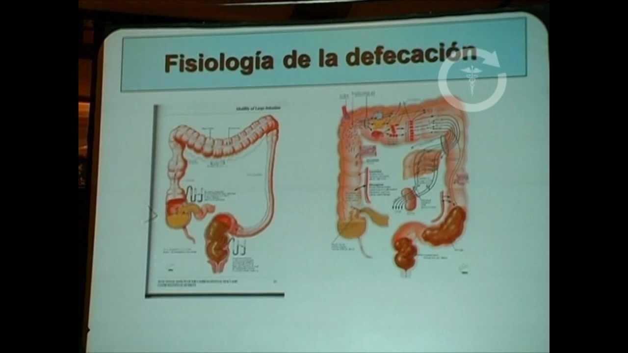 Patologías Múltiples de Colon, Recto y Ano - YouTube