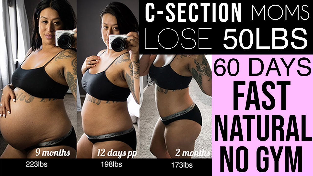 how can we lose weight after c section