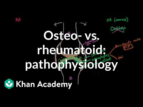 Osteoarthritis vs rheumatoid arthritis pathophysiology   NCLEX-RN   Khan Academy