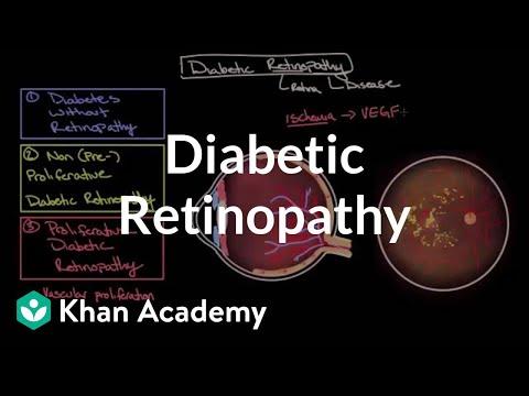Beliebte Videos – Diabetische Retinopathie