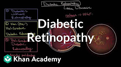 hqdefault - Difference Between Non Proliferative And Proliferative Diabetic Retinopathy
