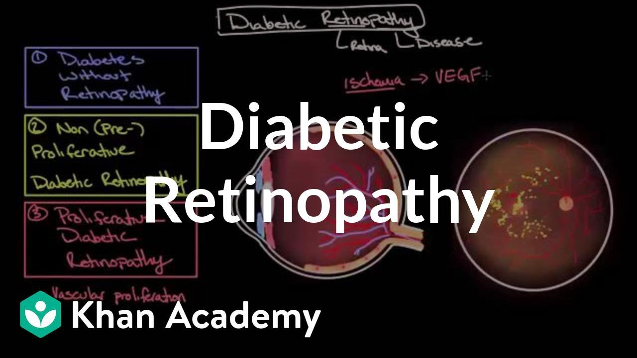 Diabetic Retinopathy Endocrine System Diseases Nclex Rn Khan Features Of The Hypertensive Include