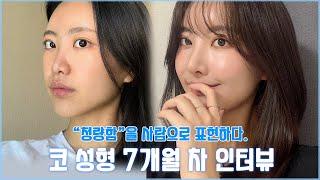 코 성형+귀족수술 7개월 차 REAL 인터뷰✨ 코 성형…