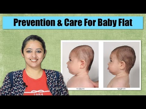 How To Maintain Baby Head Shape   Flat Head Prevention And Cure