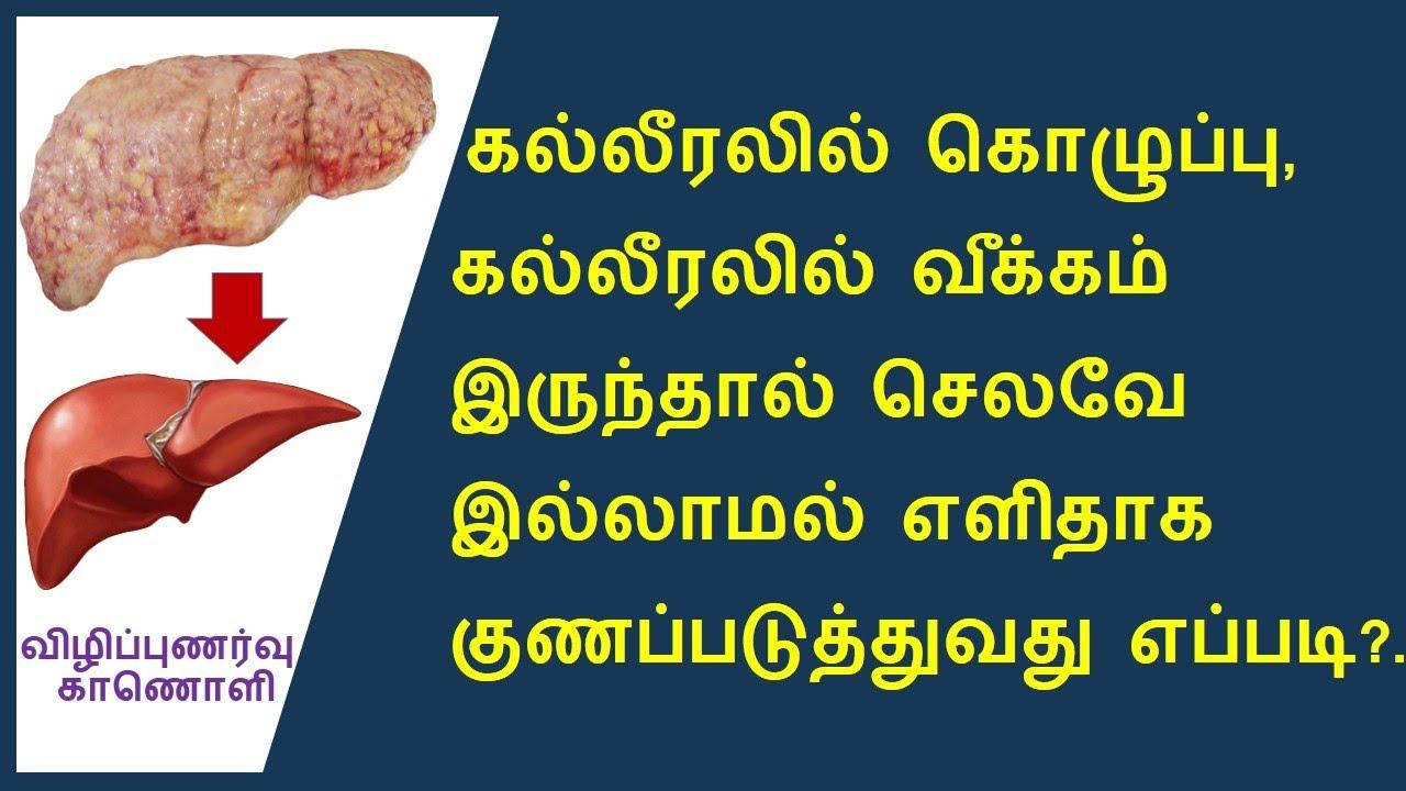 கொழுப்பு கல்லீரல் சரி செய்ய வீட்டு மருத்துவம் | Fatty Liver Home Remedies And Cures.