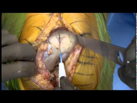 Total Knee Replacement (Part1) - Brett R. Levine, MD, MS