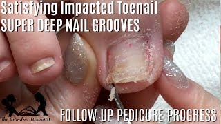 👣 Relaxing Impacted Toenail Pedicure Tutorial ASMR Massage 👣