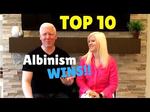 dating albino
