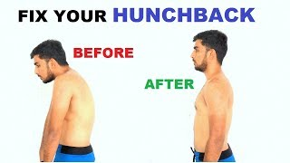 How to Fix Hunch Back(Thoracic Kyphosis)  Posture correction  (In Hindi)