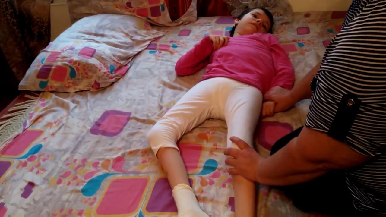 Double hemiplegia, atonic-astatic cerebral palsy, Dasha, after 6 procedures