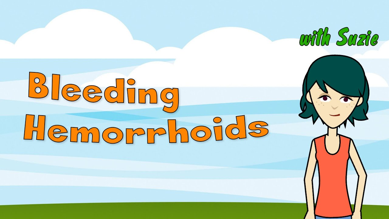 Bleeding Hemorrhoids - Will hemorrhoids go away on their own ...