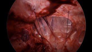 Primary Fascial Closure During Laparoscopic Incisional Hernia Repair