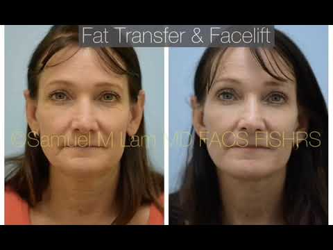 Dallas Facelift & Fat Transfer with Photos