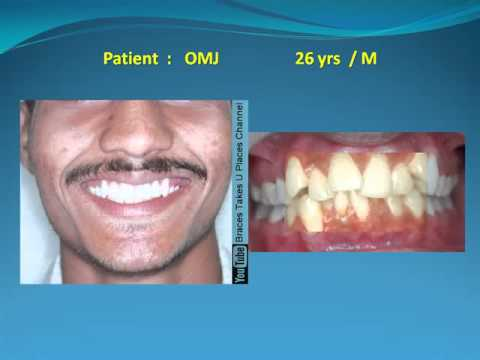 Grossly crooked set of teeth - Fixed braces and four side teeth removed
