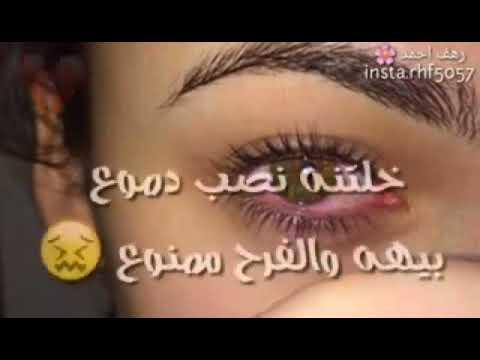 عيون حزينه Youtube