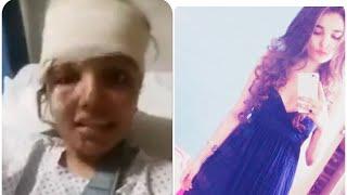 Bebo baloch injured in accident
