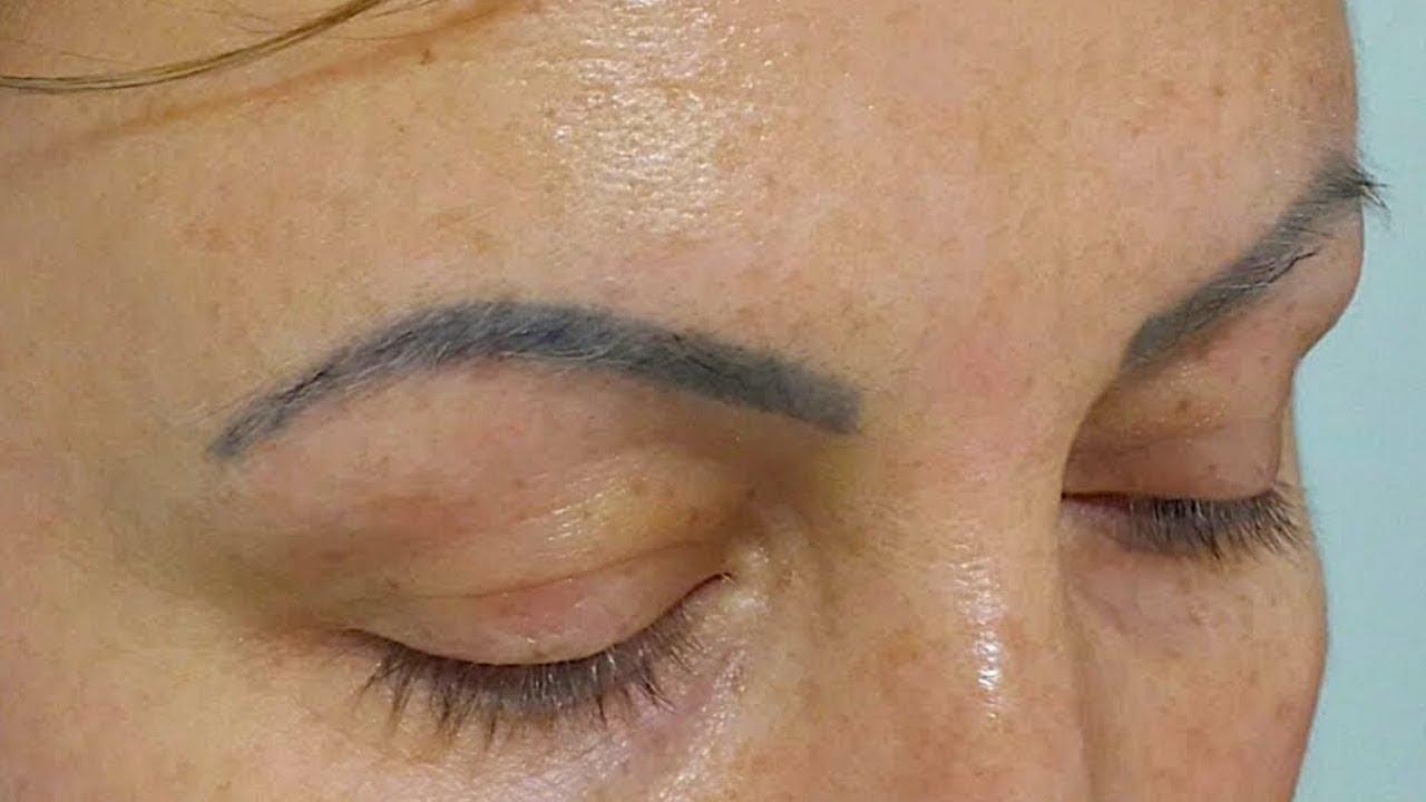 Eliminar Tatuaje Cejas Con Láser En Menos De 30 Segundos