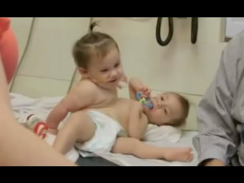 Conjoined Twins Successfully Separated