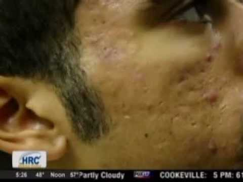 Gold Skin Care and Sublative treatment for Acne Patients