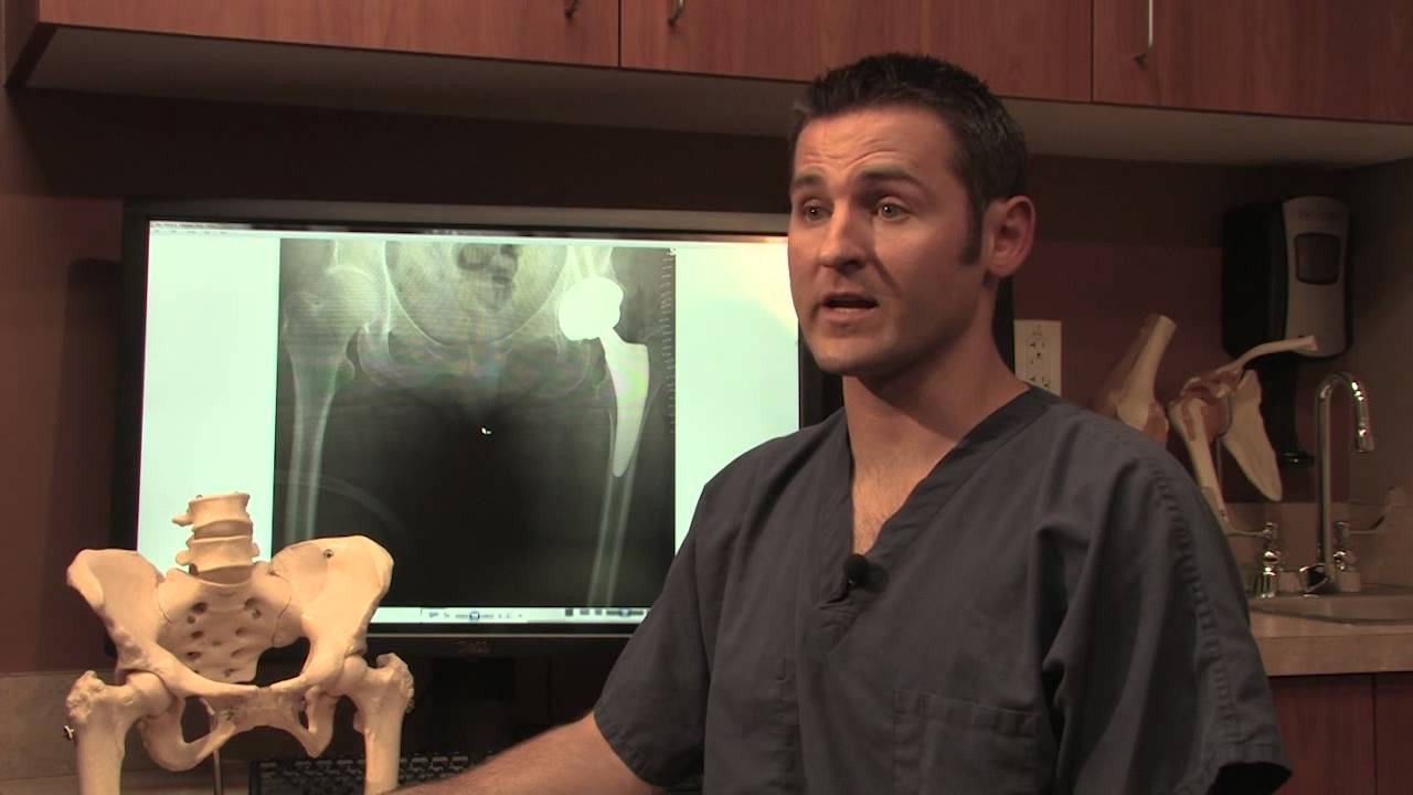 Hip Replacement Surgery - Dr Nathan Cafferky