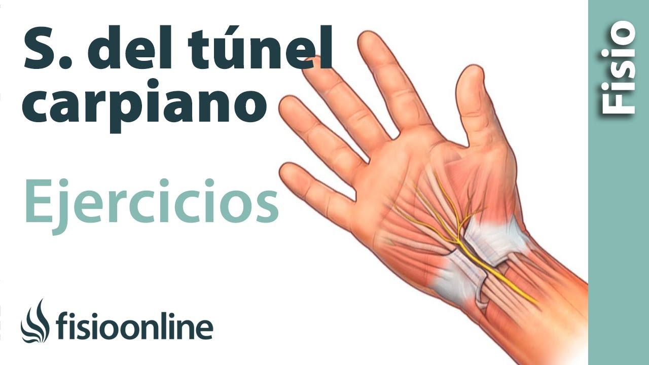 remedio casero para el dolor del tunel carpiano