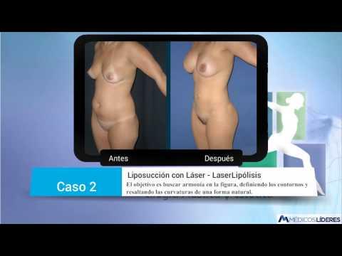 Lipolaser | 6 fotos de Antes y despues de Laser lipolisis en Bogota | Liposucción con Láser