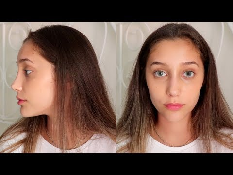 let's talk about my nose job thumbnail