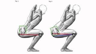 douleurs au genou - Les 8 causes les plus fréquentes de vos douleurs aux genoux