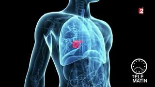 Santé - Cancer du poumon : quoi de neuf en 2017 ?