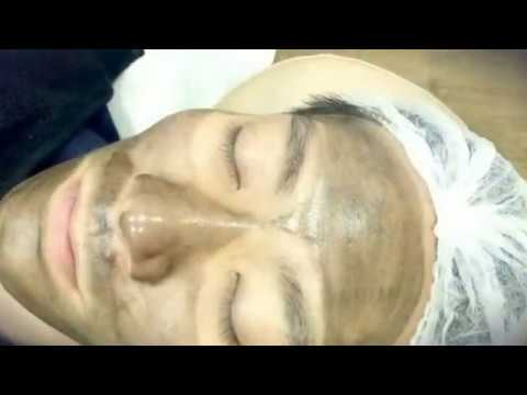 The Carbon Laser Peel - Innovative Laser Resurfacing Treatment