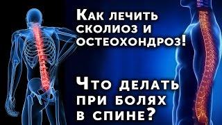 Как лечить сколиоз и остеохондроз! Что делать при болях в спине при сколиозе и остеохондрозе(http://spina.giperbarea.ru/ Как лечить сколиоз и остеохондроз! Что делать при болях в спине при сколиозе и остеохондрозе..., 2016-04-02T12:16:25.000Z)